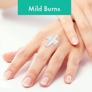 Mild Burns