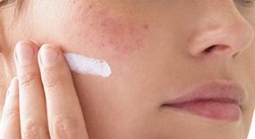 Irritated skin tips