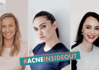 It's time to treat acne from the inside out!