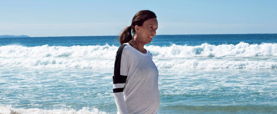 Turia Pitt for Avène #SUNSITIVE