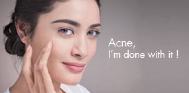 All about adult acne