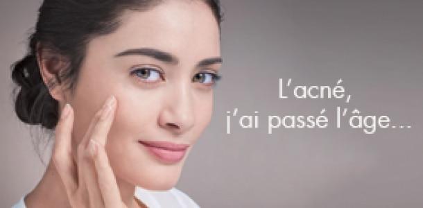 Tout sur l'acné d'adulte