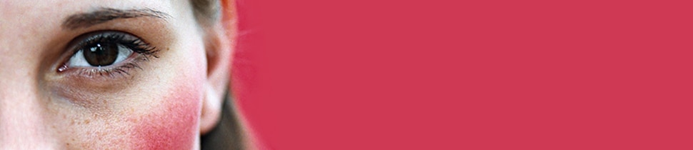 Wangen heiße rote Rosazea: Endlich