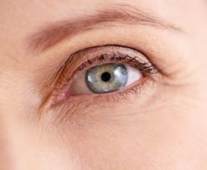 Trockene Haut unter den Augen