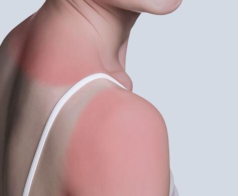 Pflege bei Sonnenbrand von Eau Thermale Avène