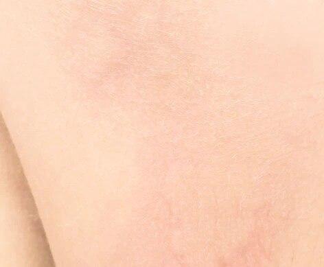 Pflege für überempfindliche und allergische Haut | Eau Thermale Avène
