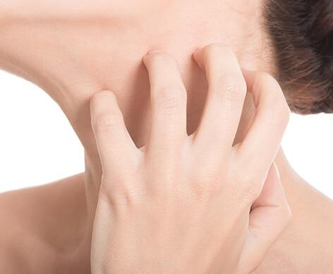 Neurodermitis im Gesicht
