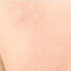 Überempfindliche Haut