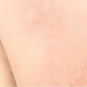 Die überempfindliche und allergische Haut