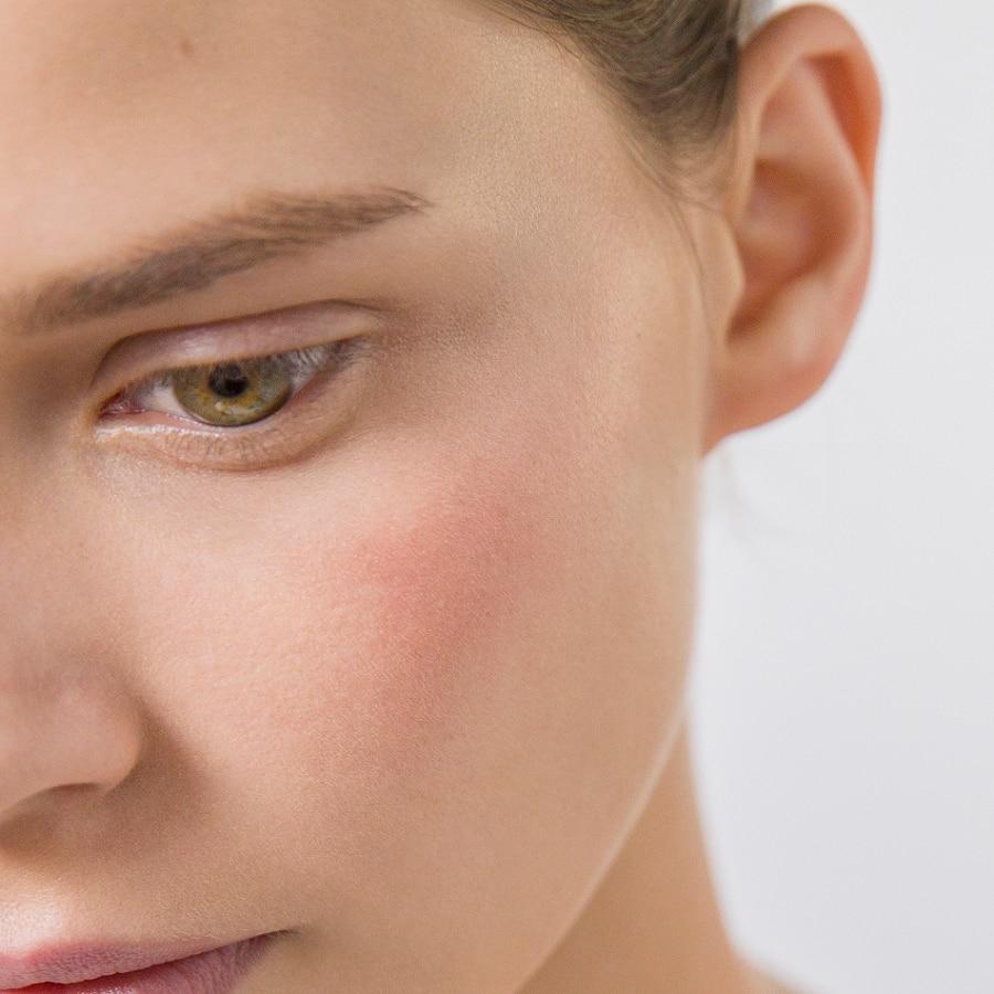 Una piel intolerante: ¿qué es exactamente?