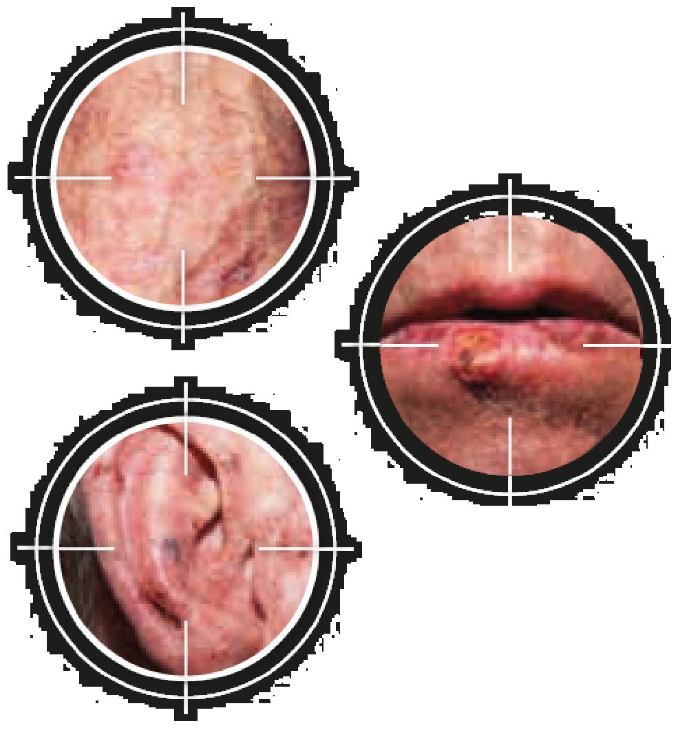 Kératose actinique