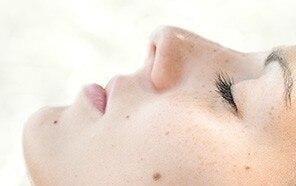 Τελετουργικό για καφέ κηλίδες και ομοιόμορφο δέρμα : Καφέ κηλίδες από τον ήλιο που συχνά καλούνται  κηλίδες γήρανσης