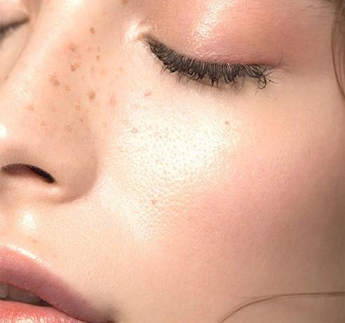Hidrirana koža