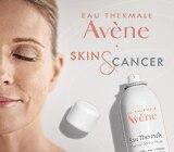 Kako ublažiti neugodne nuspojave na koži uzrokovane onkološkom terapijom?