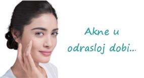 Akne u odrasloj dobi