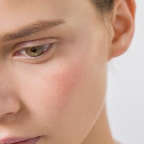 Hiperreaktivna koža