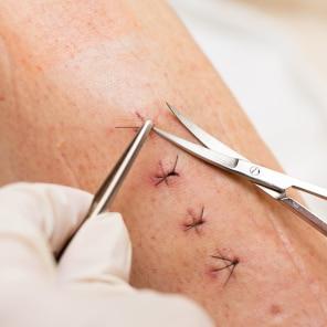Ožiljci nakon kirurških zahvata