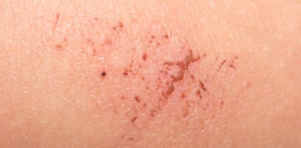 Obnova kože: naša rješenja