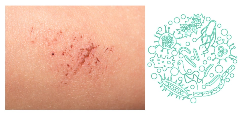 Zacjeljivanje kože