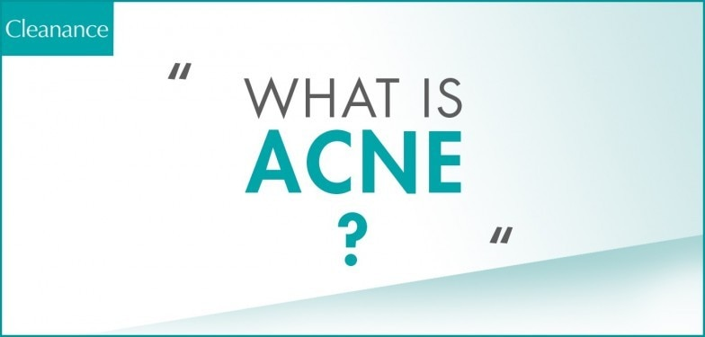 WHAT IS ACNE
