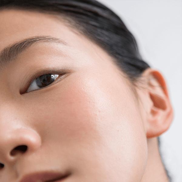 Come distinguere una pelle intollerante da una pelle allergica