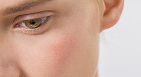 I nostri consigli per calmare una pelle reattiva