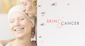 skin-and-cancer-avene