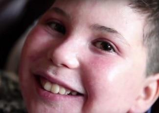 Avène daje nadzieję – historia Aidana chorującego na ciężką postać AZS