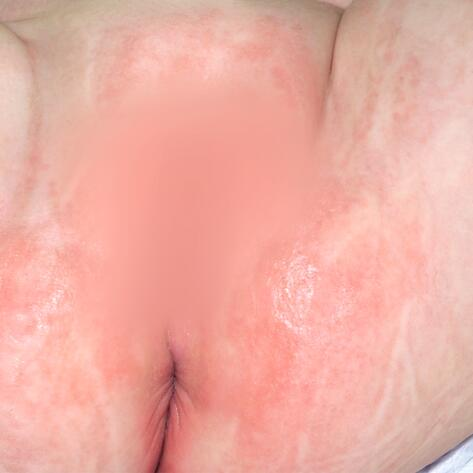 iritatie bebelus