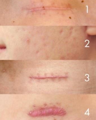 tipuri de cicatrici