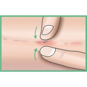 Cicatrice semi-matură: Palpează-rulează