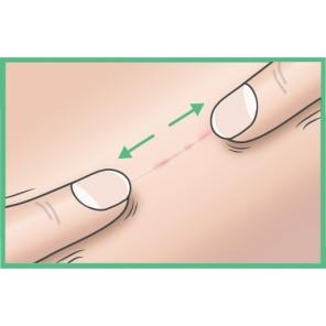 Cicatrice matură: ÎNTINDE