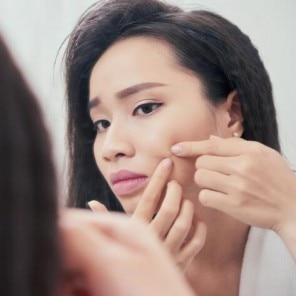 Cum eviți cicatricile post-acneice