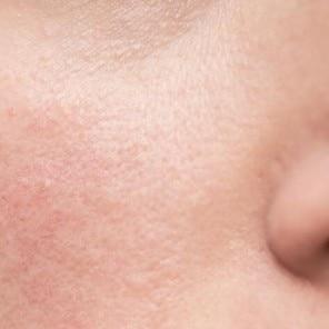 Cauzele iritației