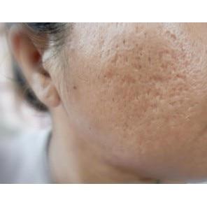 Cicatricile și îngrijirea post acneică - Un ghid util