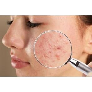 Tot ce trebuie să știi despre acnee