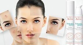Забудьте об акне – да здравствует чистая кожа!