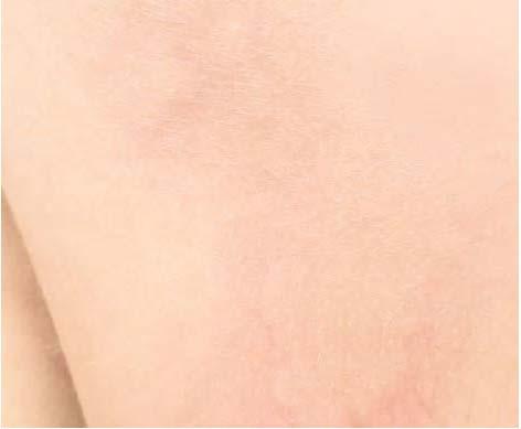 Eau Thermale Avène Netolerantna, k alergijam nagnjena koža