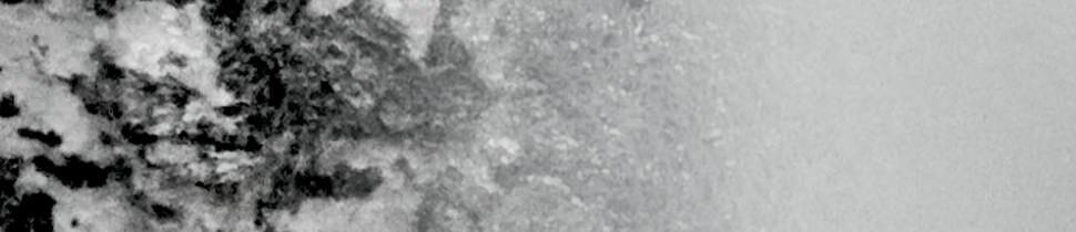 Kahverengi Lekeler YÜZ